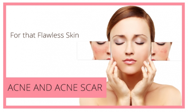 Small-Slider-Acne and Acne