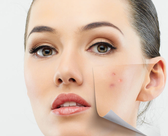 Acne and acne scar treatment